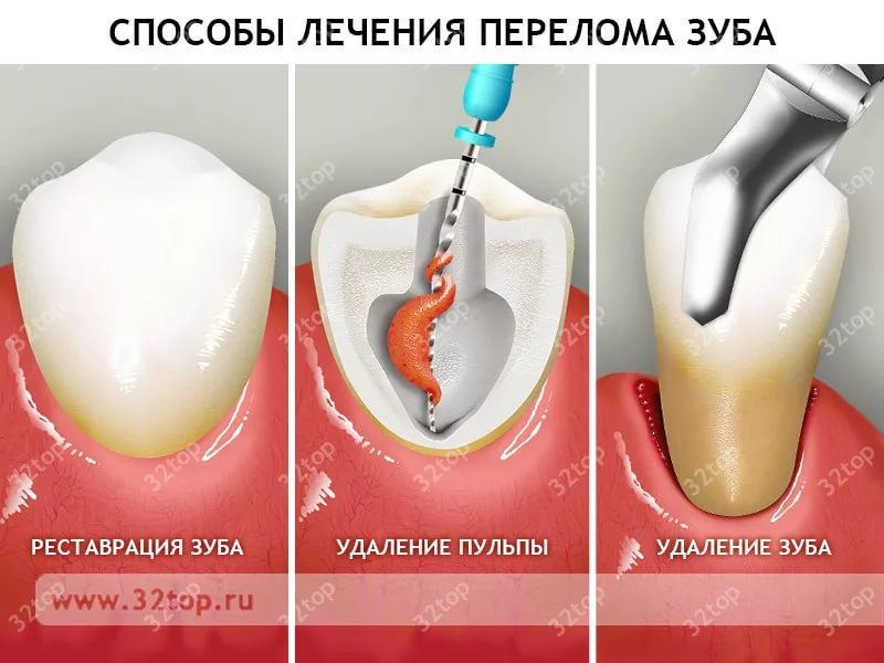 Восстановление зуба без корня