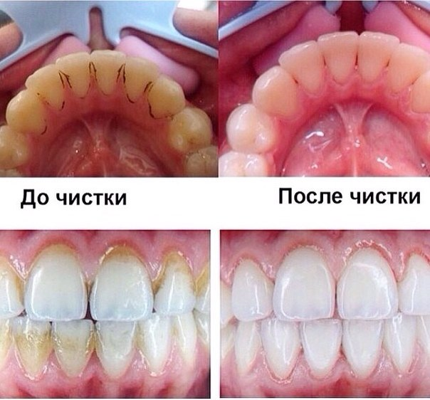 Как почистить налет на зубах в домашних условиях