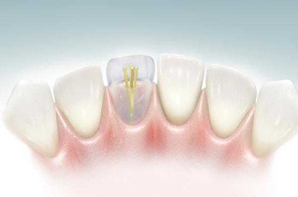 Штифты для зубов при эстетической реставрации