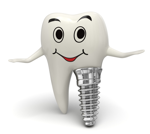 Why-get-dental-implants2