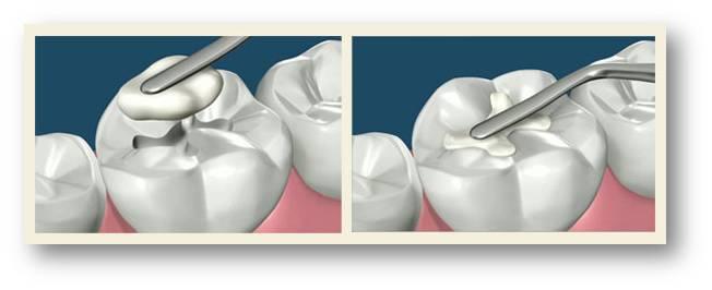 Почему болит зуб после проведенного лечения?
