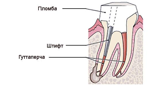 Восстановление культи зуба Фиксация стекловолоконного штифта