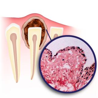 Киста челюсти причины: симптомы и лечение