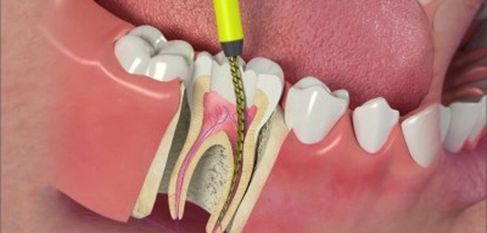 img-root-canal-therepy-e1468311502168
