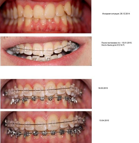 Ортодонтические дуги для брекетов: что это такое, виды, процесс смены дуги