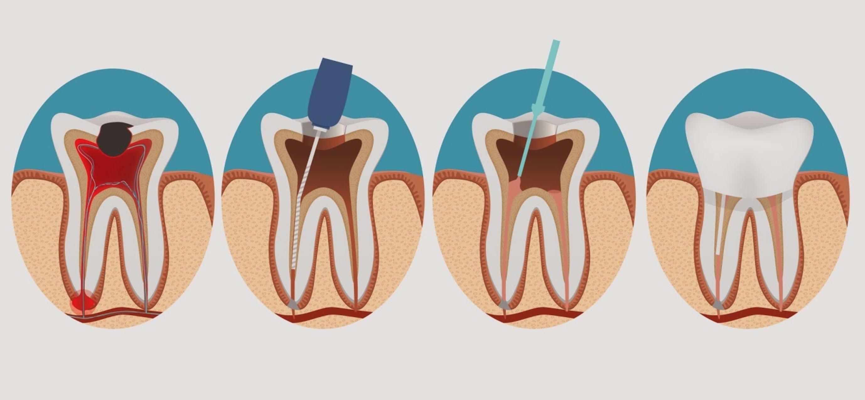 Лечение пульпита этапы и восстановительные процедуры