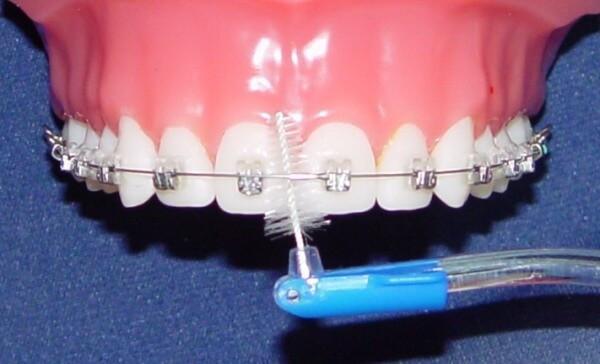 Деминерализация зубов при ношении брекетов
